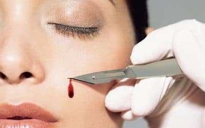 Gli interventi di Chirurgia Plastica sono pericolosi?
