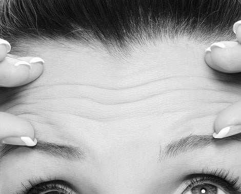 Rughe frontali glabellari