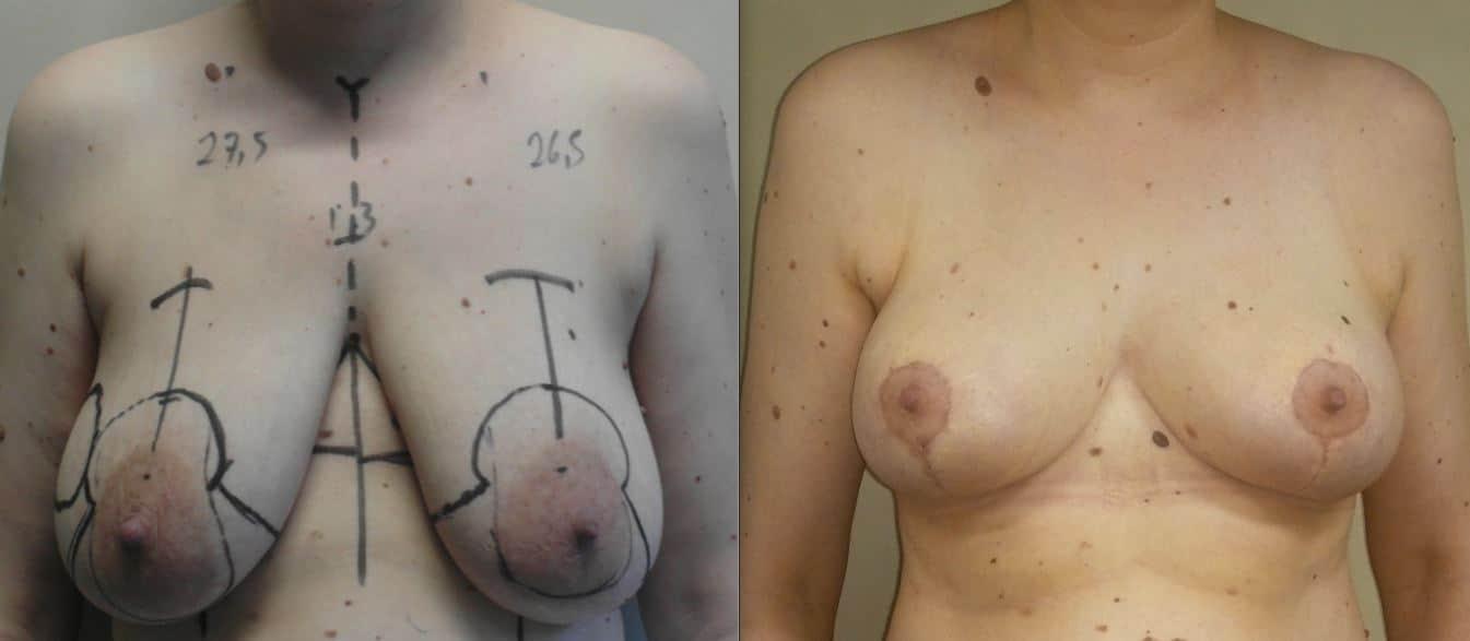 Rimodellamento bilaterale, Quadrantectomia destra QSE, postoperatorio 4 settimane