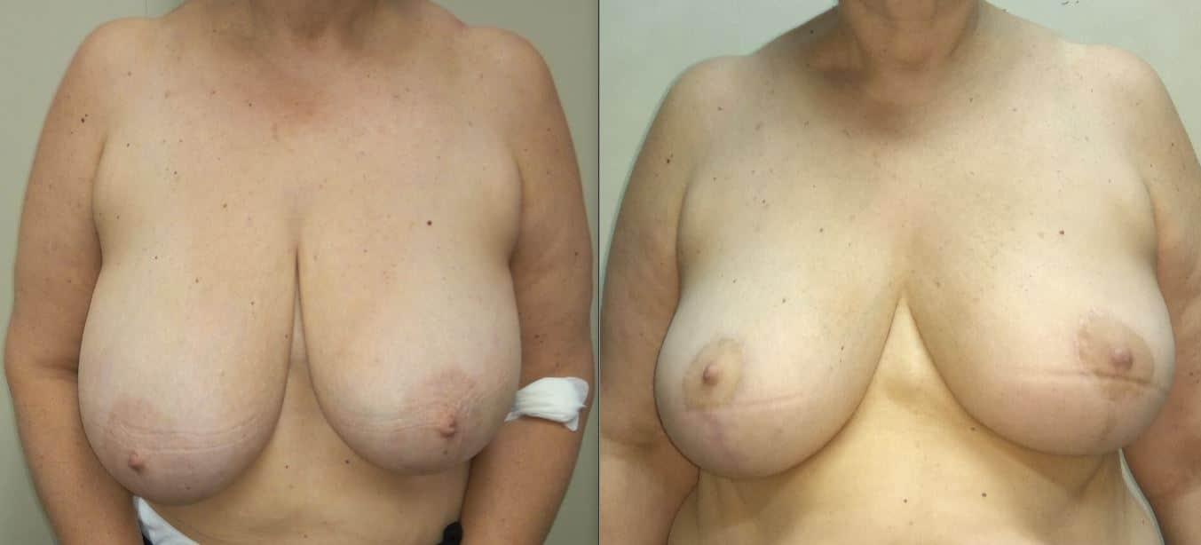 Rimodellamento Bilaterale, Quadrantectomia QSE sinistro, postoperatorio 12 settimane