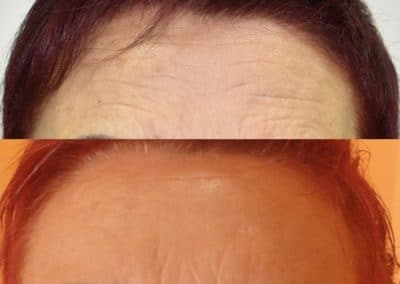 Botox Fronte -