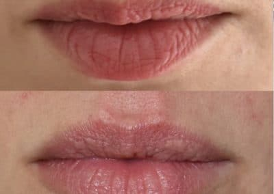 pre e post trattamento filler natural lip