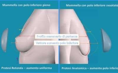 Quali protesi sono migliori per un risultato naturale? Anatomiche o Rotonde?