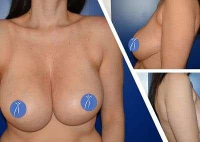 macromastia pre intervento