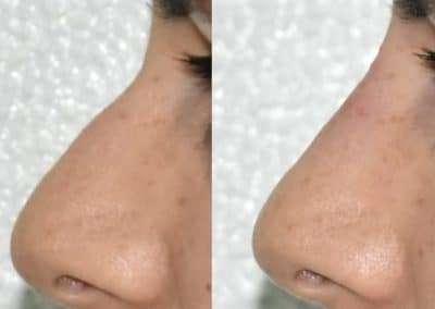 rinofiller rinoplastica non chirurgica calabria