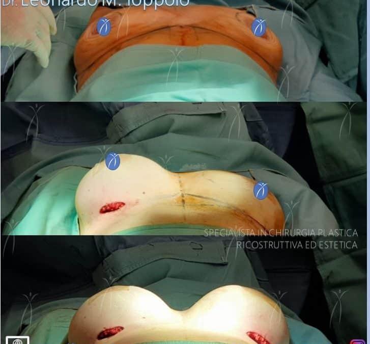 Sizer intraoperatori nella mastoplastica additiva e nella ricostruzione mammaria
