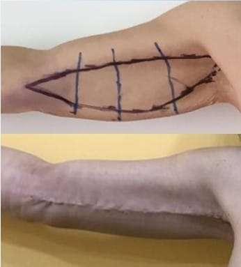 brachioplastica lifting a 1 mese