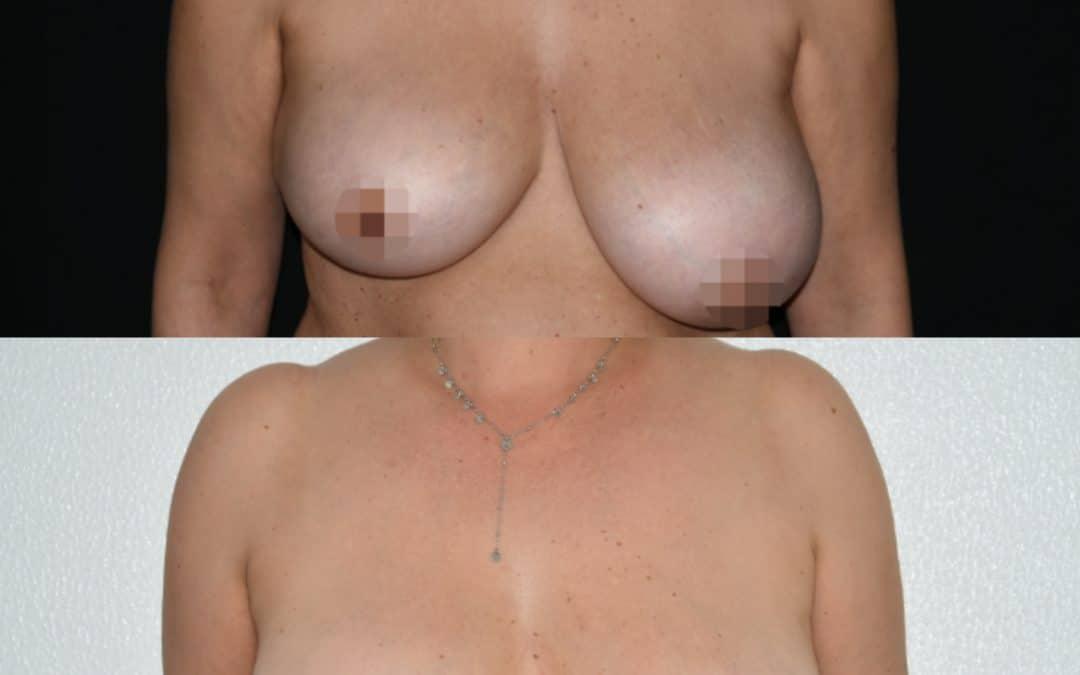 Asimmetria mammaria – come intervenire? Calabria
