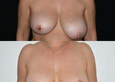 asimmetria mammaria in calabria