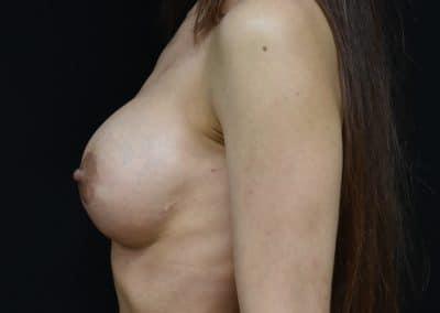 post intervento revisione mammaria
