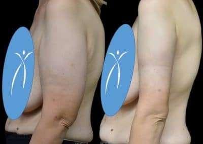 lifting braccia calabria