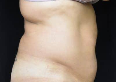 addominoplastica calabria pre laterale
